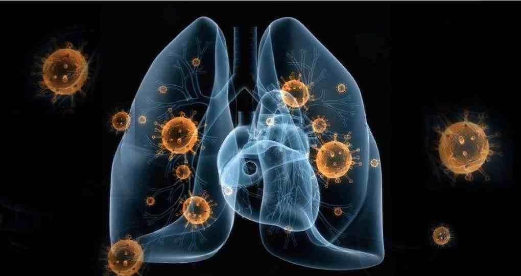 新型冠状病毒有治疗方法吗