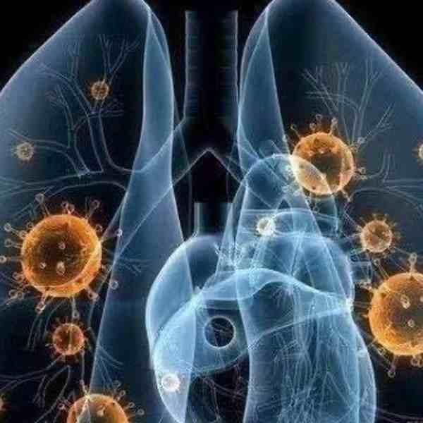 全球新型冠状病毒感染人数