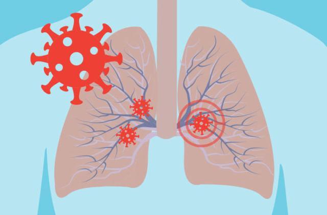张文宏称新冠已成为常驻病毒,新冠病毒长期与人类共存-第2张图片-免单网
