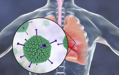 张文宏称新冠已成为常驻病毒,新冠病毒长期与人类共存-第3张图片-免单网