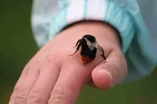 一家三口采板栗被胡蜂蜇伤
