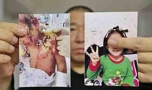 热文:抚顺6岁被虐女童父亲望严惩前妻