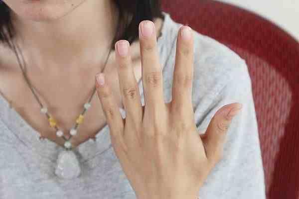 为什么指甲上会出现竖纹?