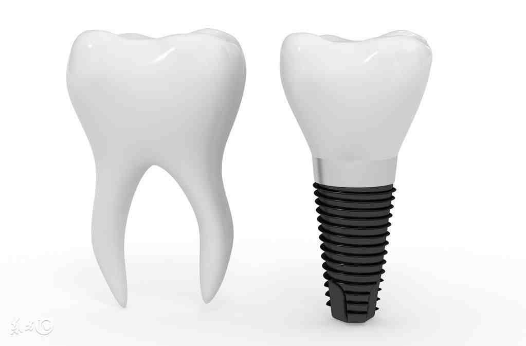 种植牙的寿命(国产种植牙寿命是多少年) 投稿 第1张