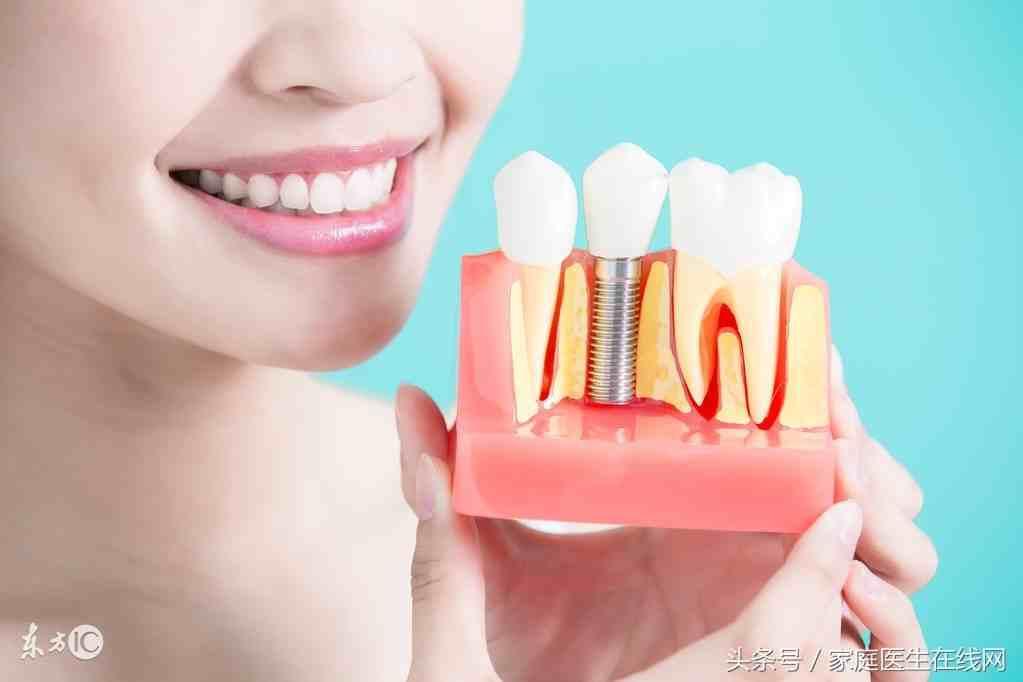 种植牙的寿命(国产种植牙寿命是多少年) 投稿 第4张