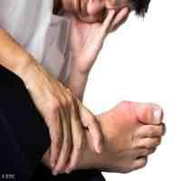 痛风病症状(痛风都有哪些临床表现?