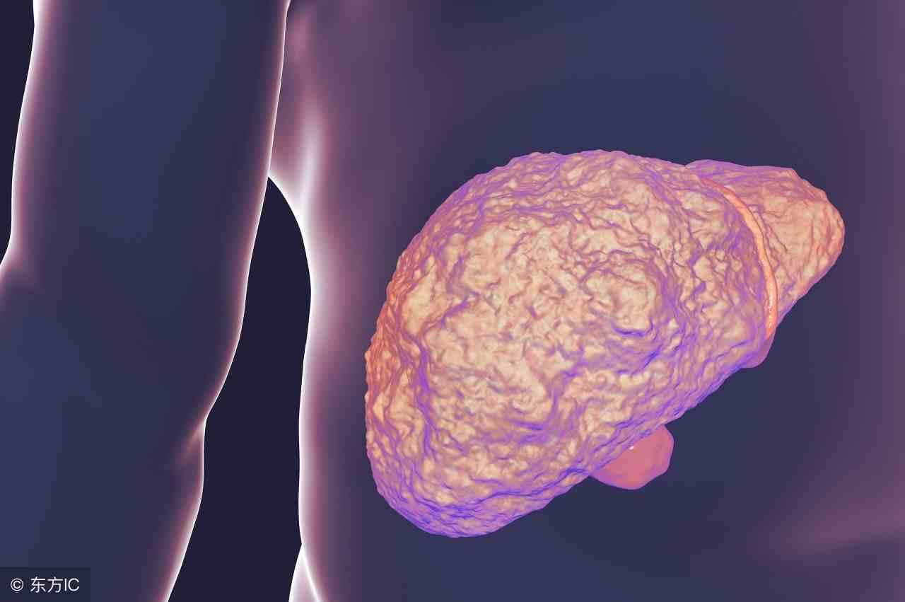 治疗肝癌,一般有5个治疗方法,快来了解了解