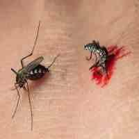 蚊子咬了怎么止痒(防治蚊子叮咬瘙痒的10种方法)