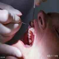 牙周炎吃什么药(牙周炎常用治疗药物)
