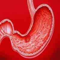 糜烂性胃炎的症状(糜烂性胃炎通常有3症状)