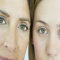 怎样淡化眼部皱纹( 淡化眼部皱纹的五个方法)