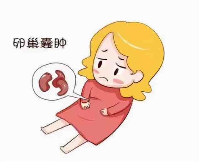 卵巢囊肿吃什么药(体检发现卵巢囊肿怎么办)