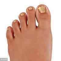 脚指甲变厚怎么治(脚指甲变黄变厚的原因)